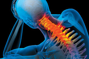 chronic spinal pain - Copyright – Stock Photo / Register Mark